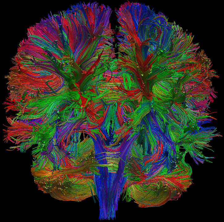 Personalized Brain Mapping Diffusion Tensor Imaging
