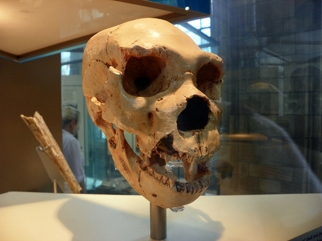 Oldest Cancer Ever?: 120,000-Year-Old Bone Tumor Found In ...