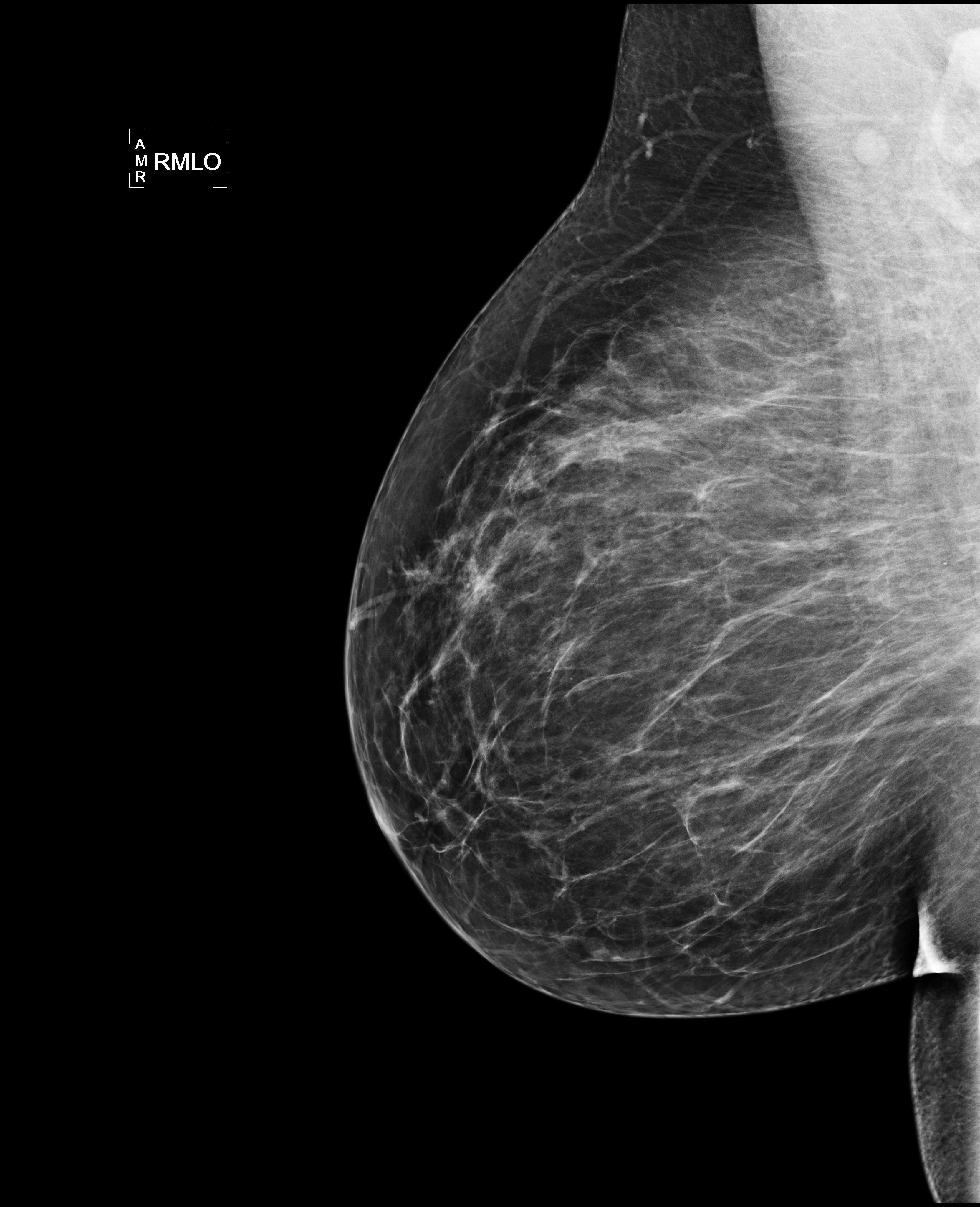 Digital breast tomosynthesis bilateral