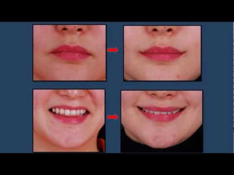 Perma Smiles South Korean Mouth Corner Surgery Plus 4