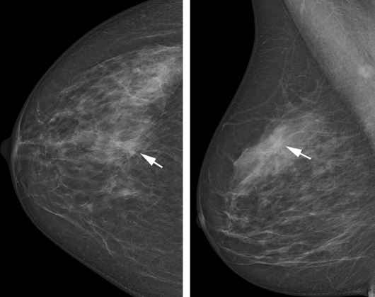 Which Mammogram Screening System Is Best New Photon