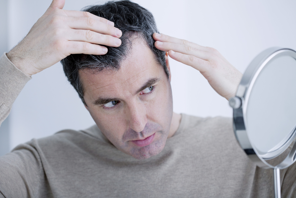 Baldness Myths 5 Things That May Or May Not Be Causing Hair Loss