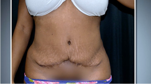 Botched Features The Case Of A Mexican Tummy Tuck And -5273