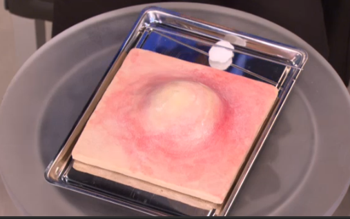 How To Pop A Pimple: Dr  Oz Explains The Right Way To Pop A Zit With