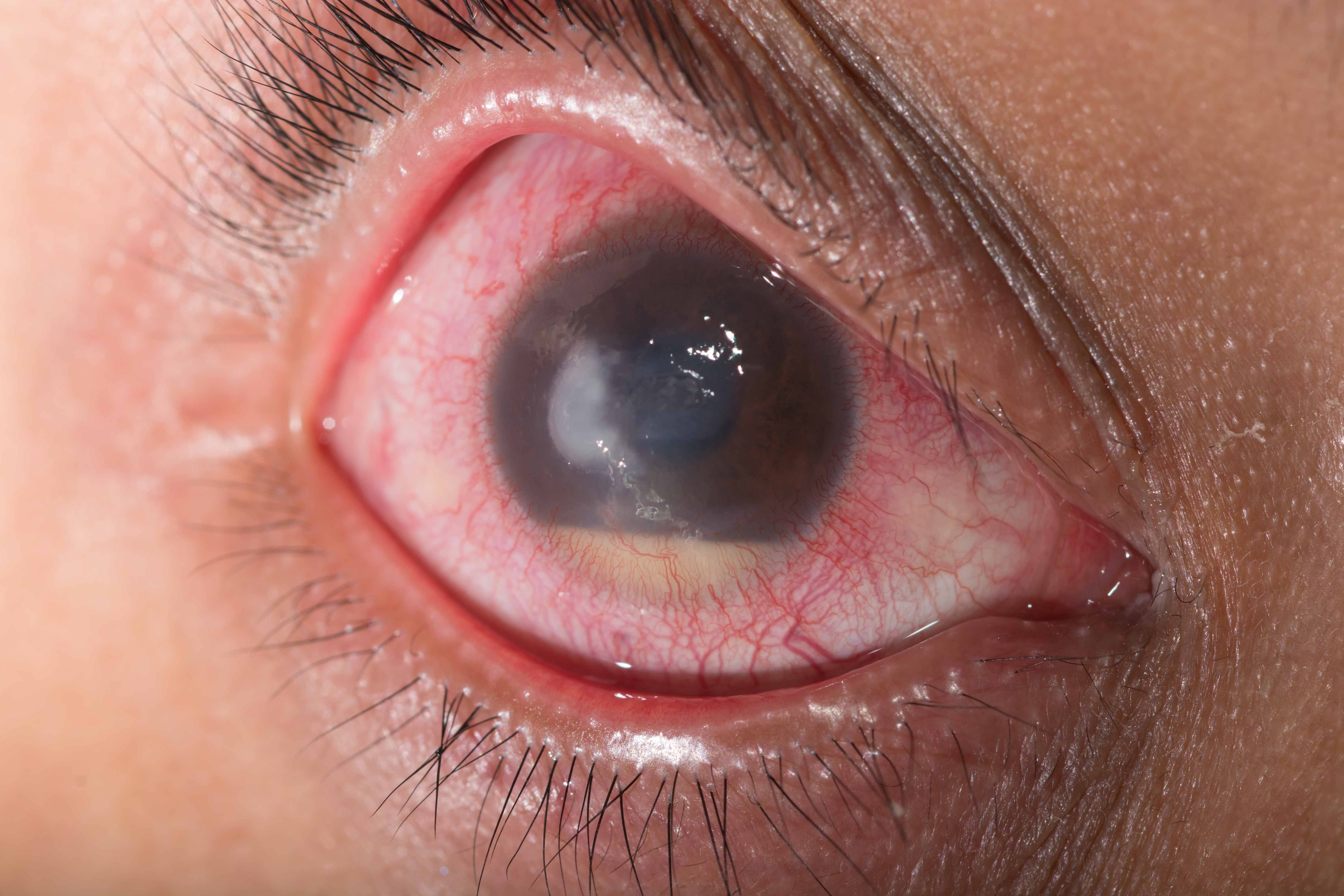 glaucoma relief new wave of drugs poised to shake up glaucoma treatment