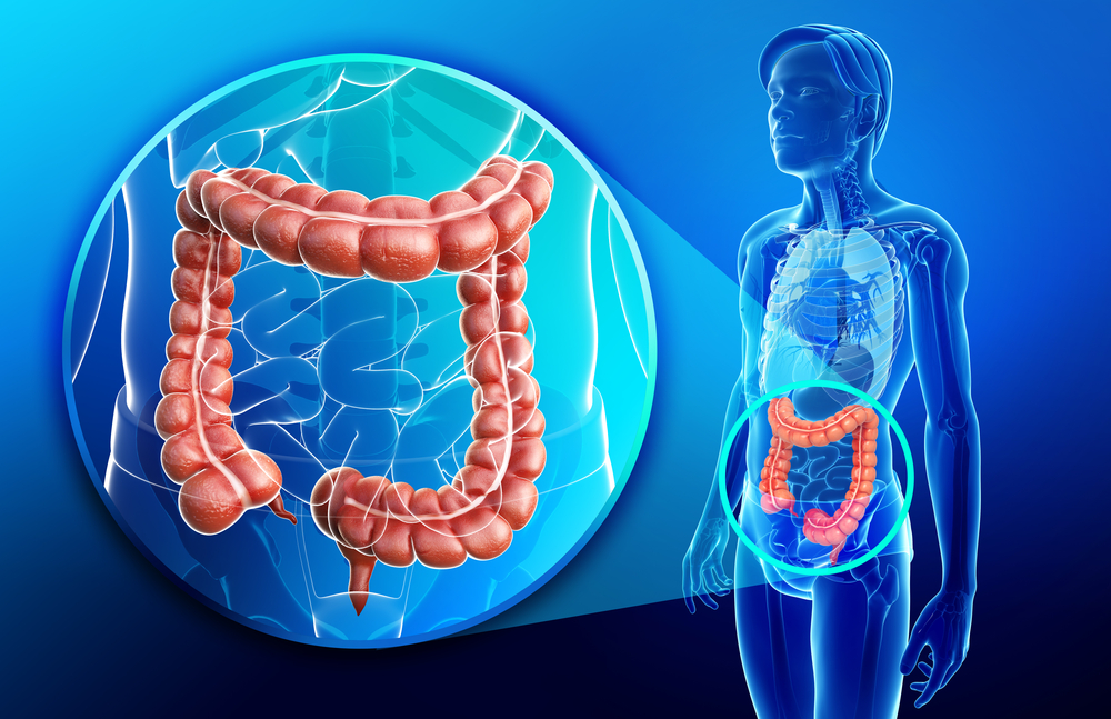 Colon Cancer Patients With Left Sided Tumors Have Better Survival