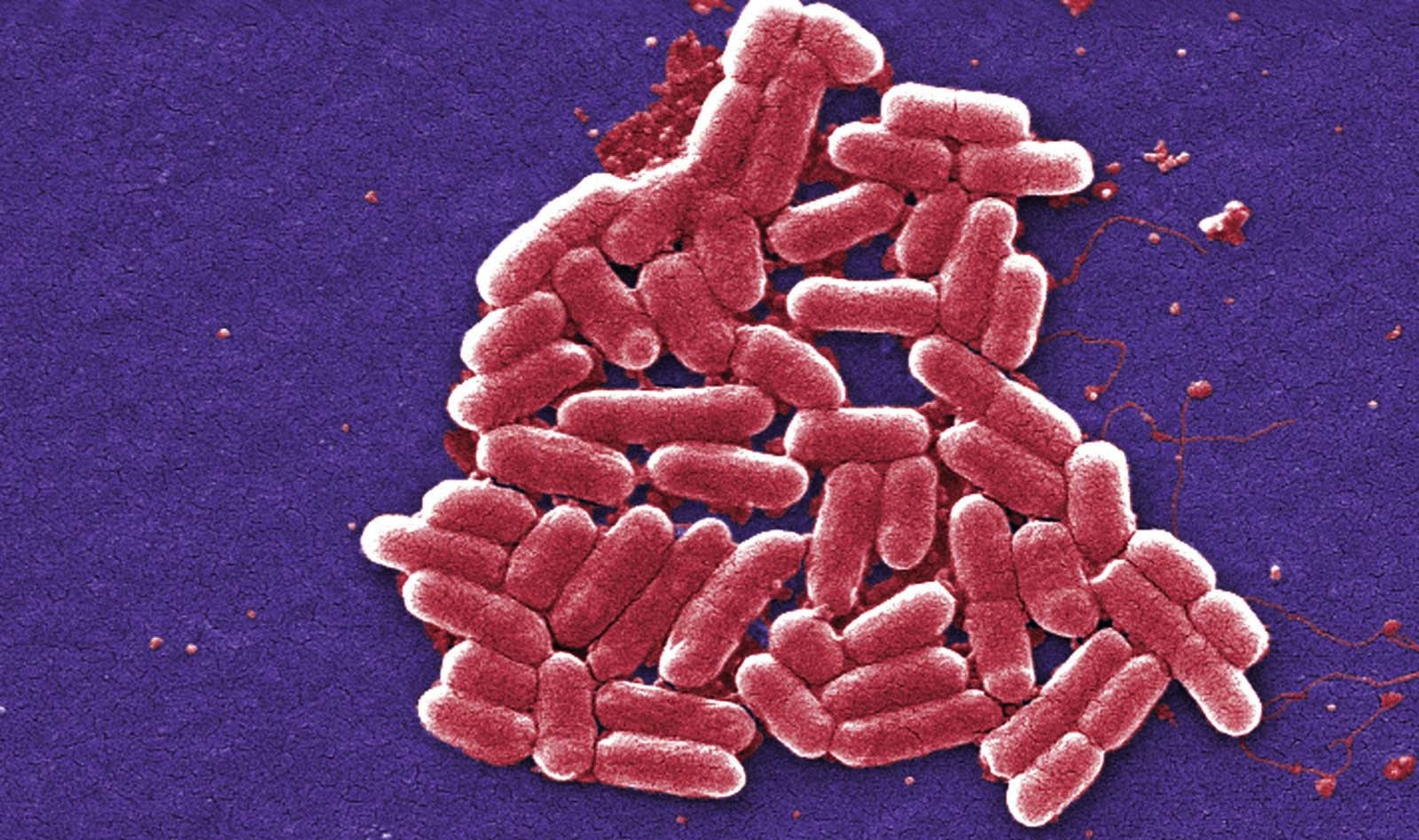 Drug Resistant Shigella Is Circulating In The Us What You