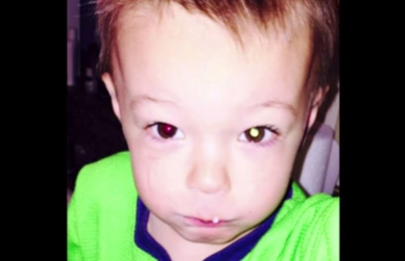 Boys Eye Cancer Appears As White Spot In Photo Confirming His