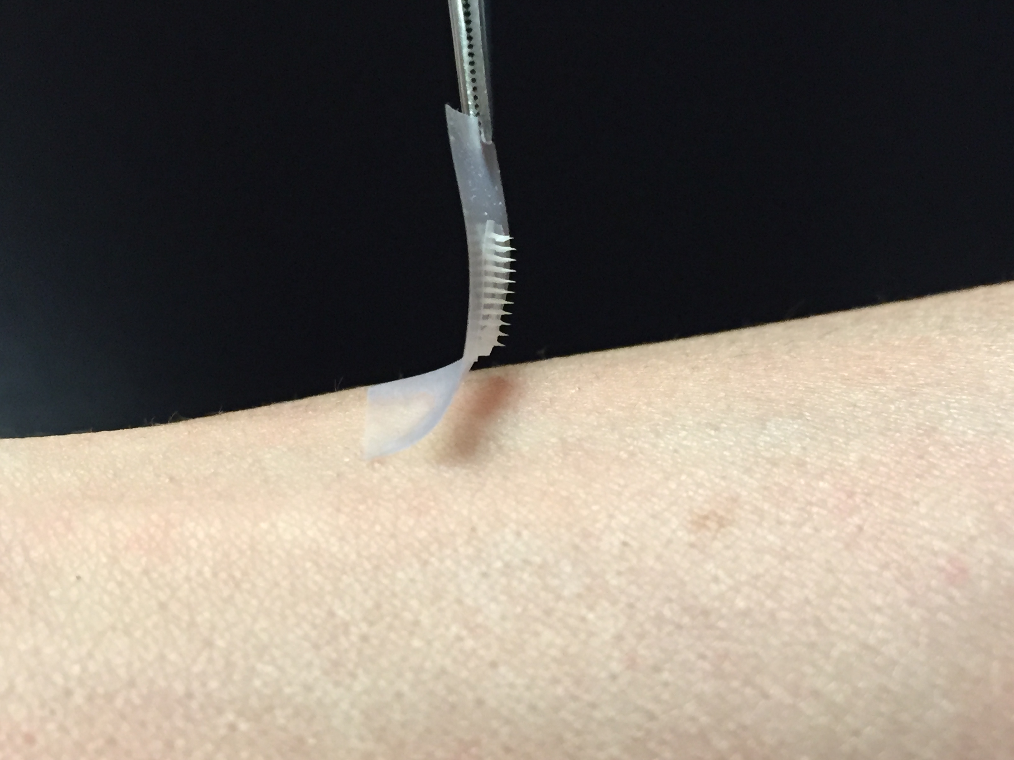 No More Needles? Experimental Insulin Patch Could Someday ...