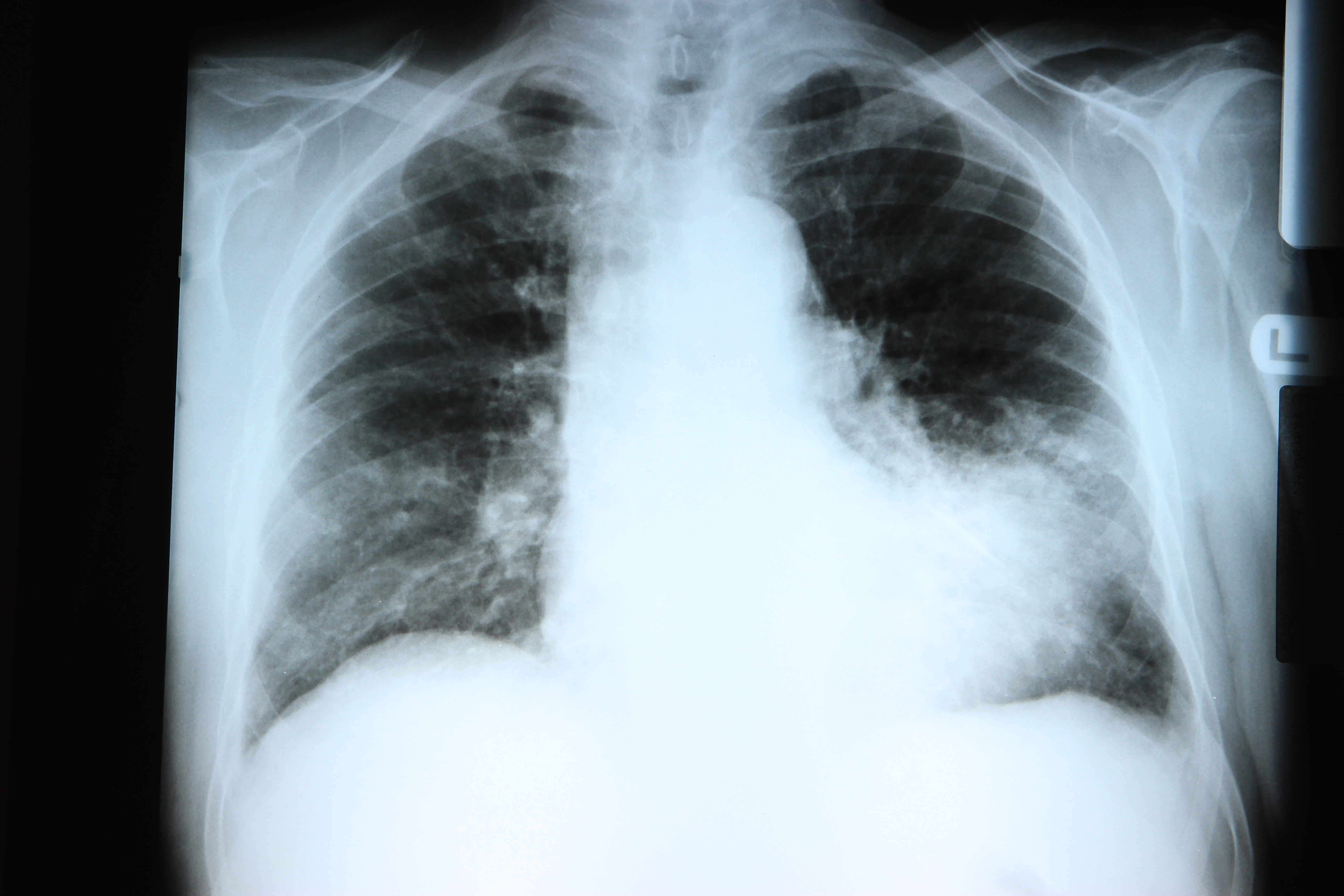 Photo of Pneumonia in the time of COVID-19 and Beyond