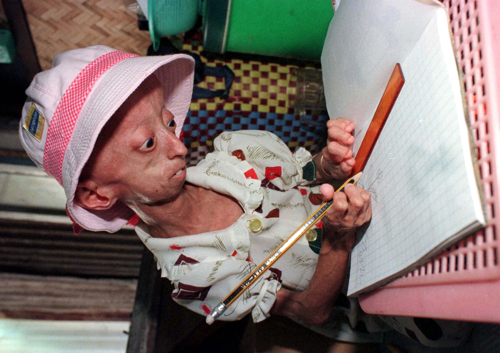 Benjamin Button Disease The Reason Kids With Progeria