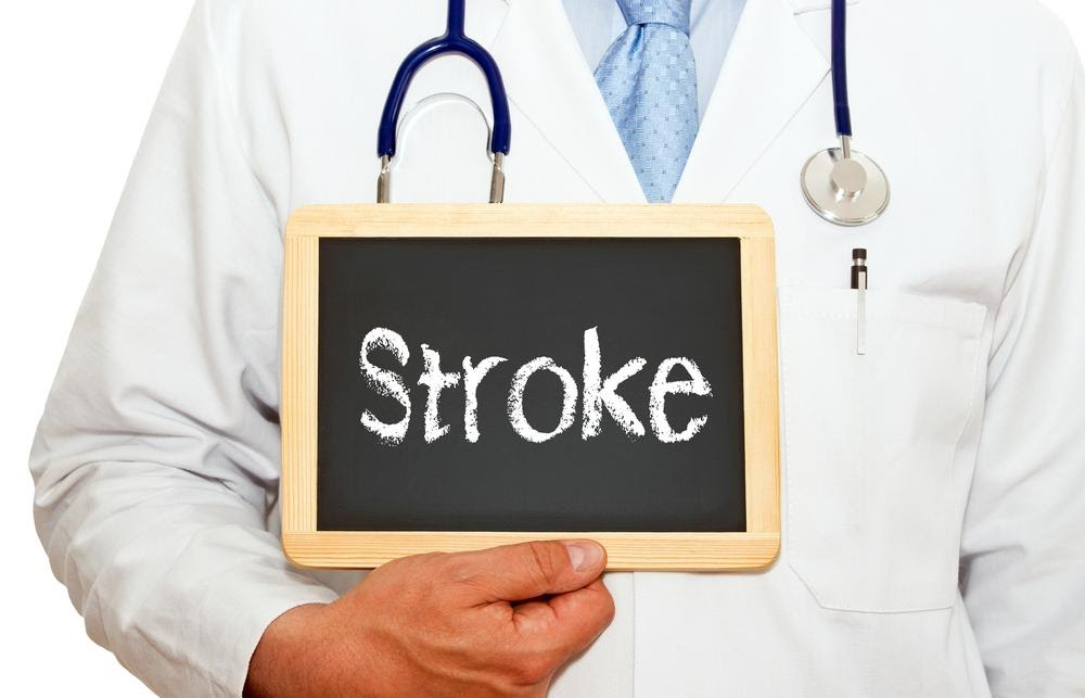 Did You Know These 9 Facts About Strokes?