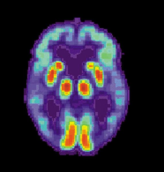Blood Tests May Soon Predict Alzheimer's disease