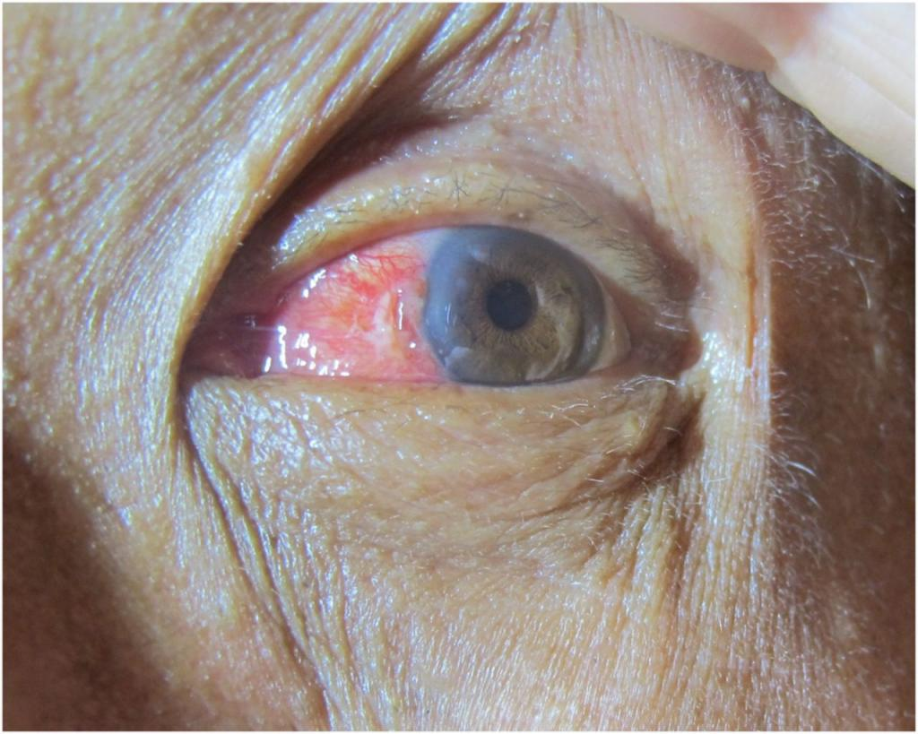 Surfer treats eye condition with 30-foot wave to remove fibrous tissue