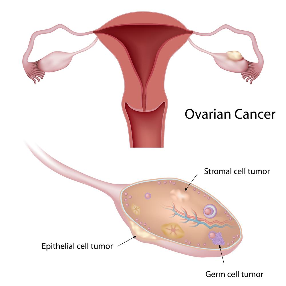 Pills To Replace Chemo? A New Way To Fight Ovarian Cancer