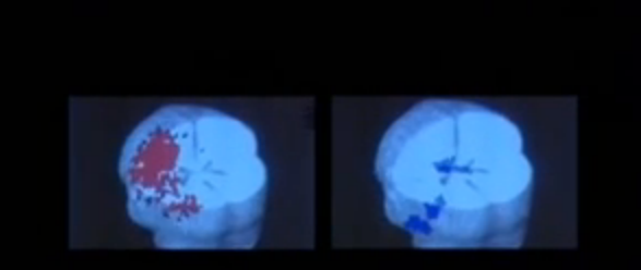 MRI images of two acupuncture techniques