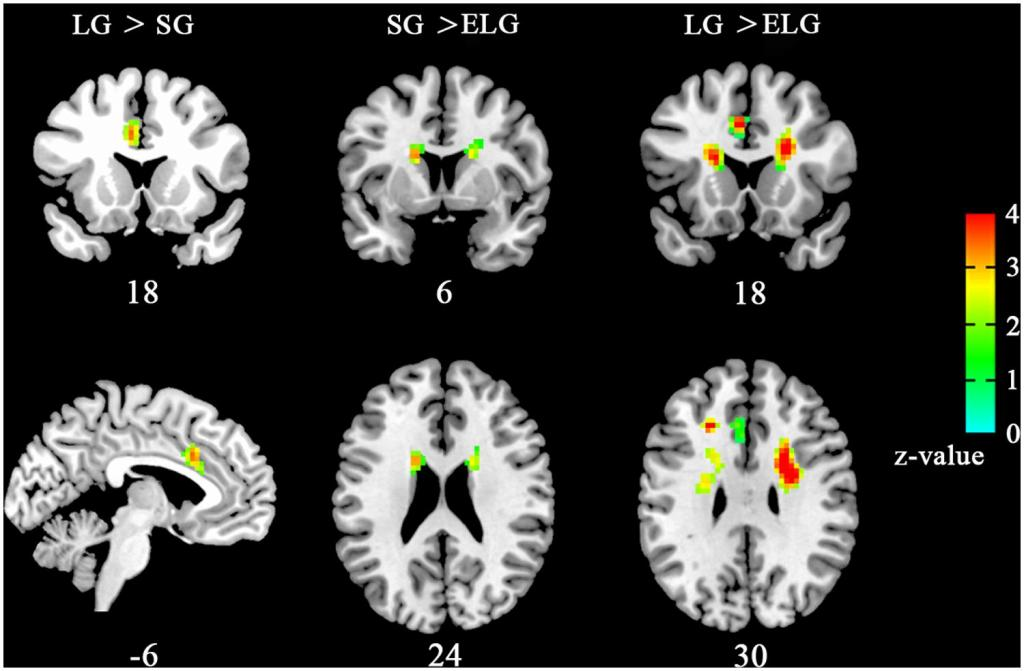 Brain scans of the in-love group and ended-love group