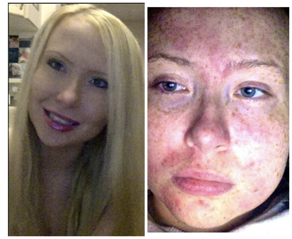 This Woman Has Cholinergic Urticaria, A Condition That Makes