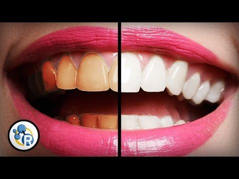 Which OTC Teeth Whitening Solution Is Best, And Are Any Of Them Truly Safe?