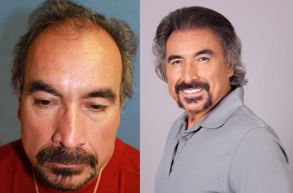 Before After Bearded male