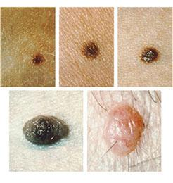 Common Moles