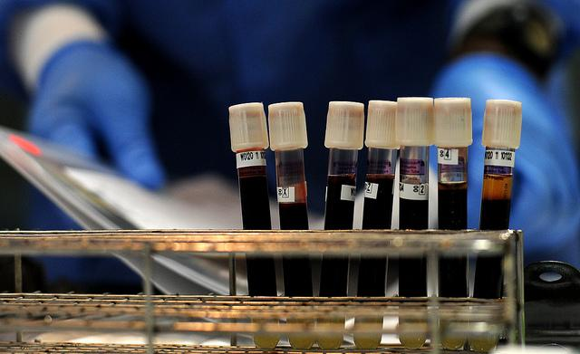 6 Ways Blood Type Can Influence Personal Health: From Mild