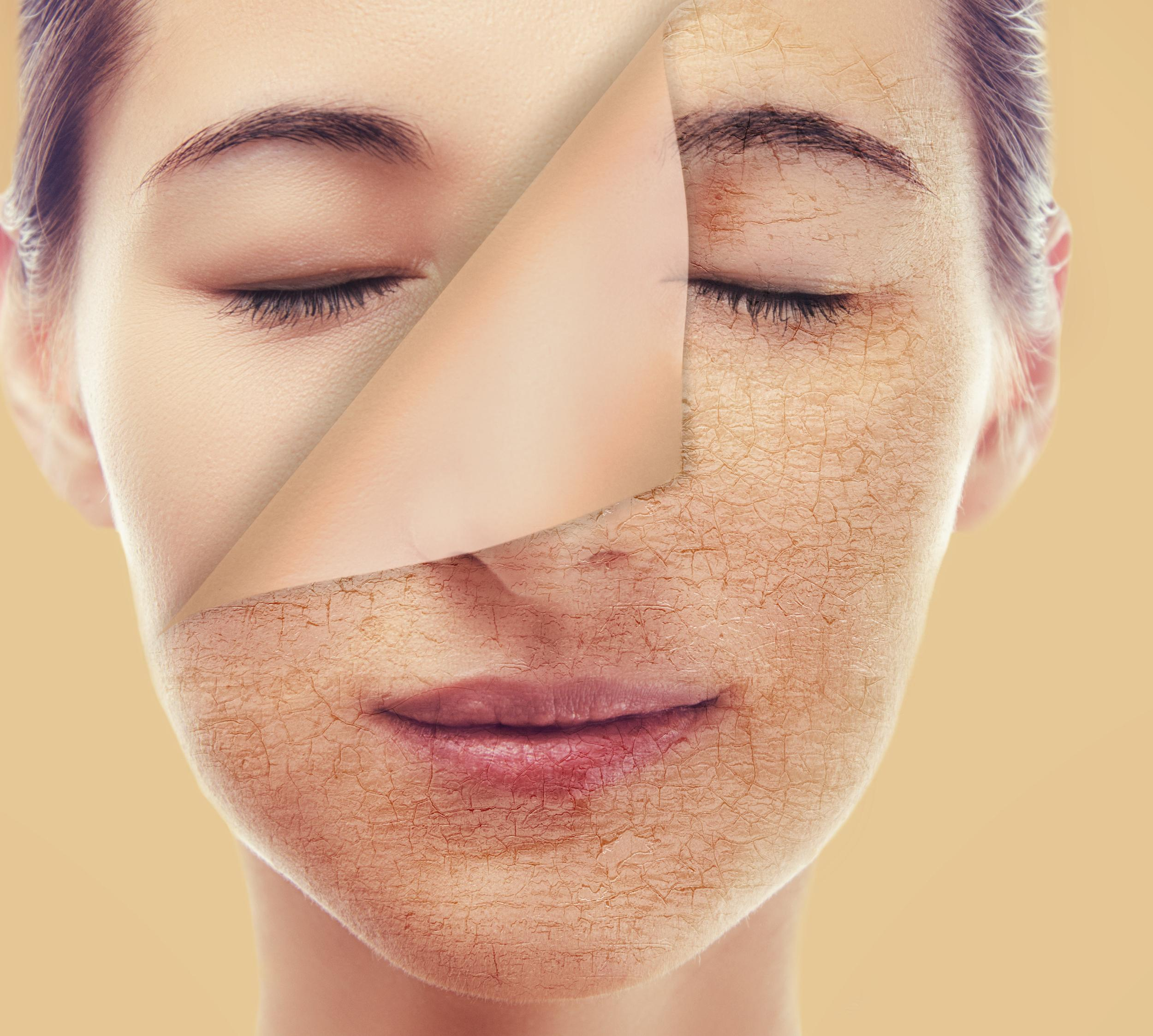 Skin Care Begins With Awareness: What A Pale Complexion
