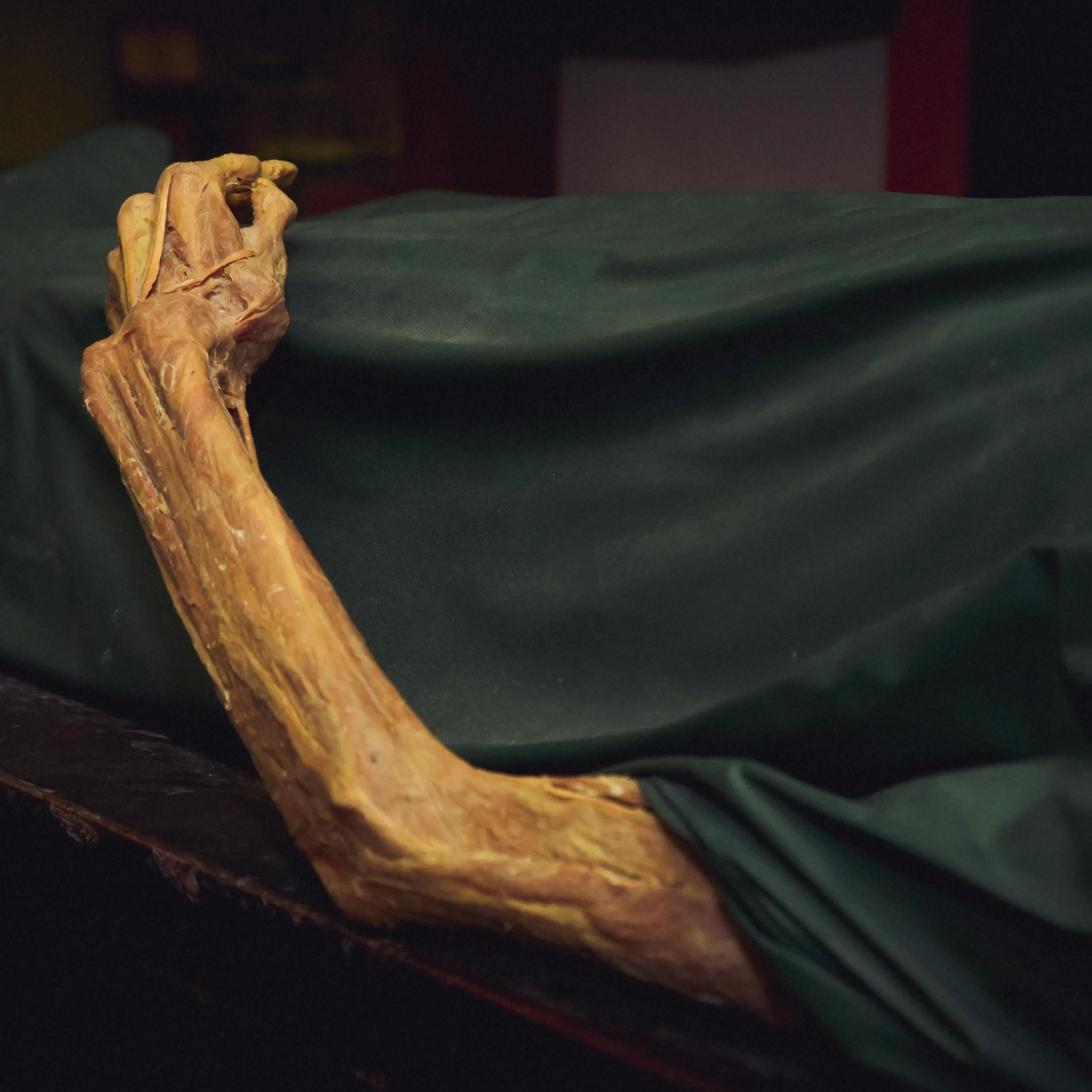 What A Forensic Scientist Doesn't Tell You: 7 Postmortem