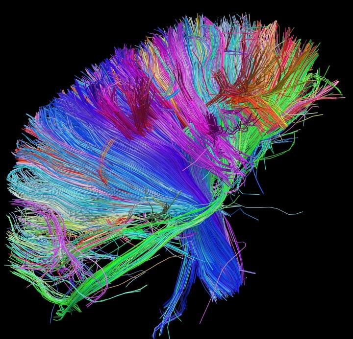 White Matter Fibers Brainstem and above