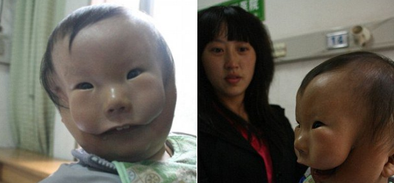 With Born Undergoes 'two Procedures To Surgical Boy Chinese Faces'