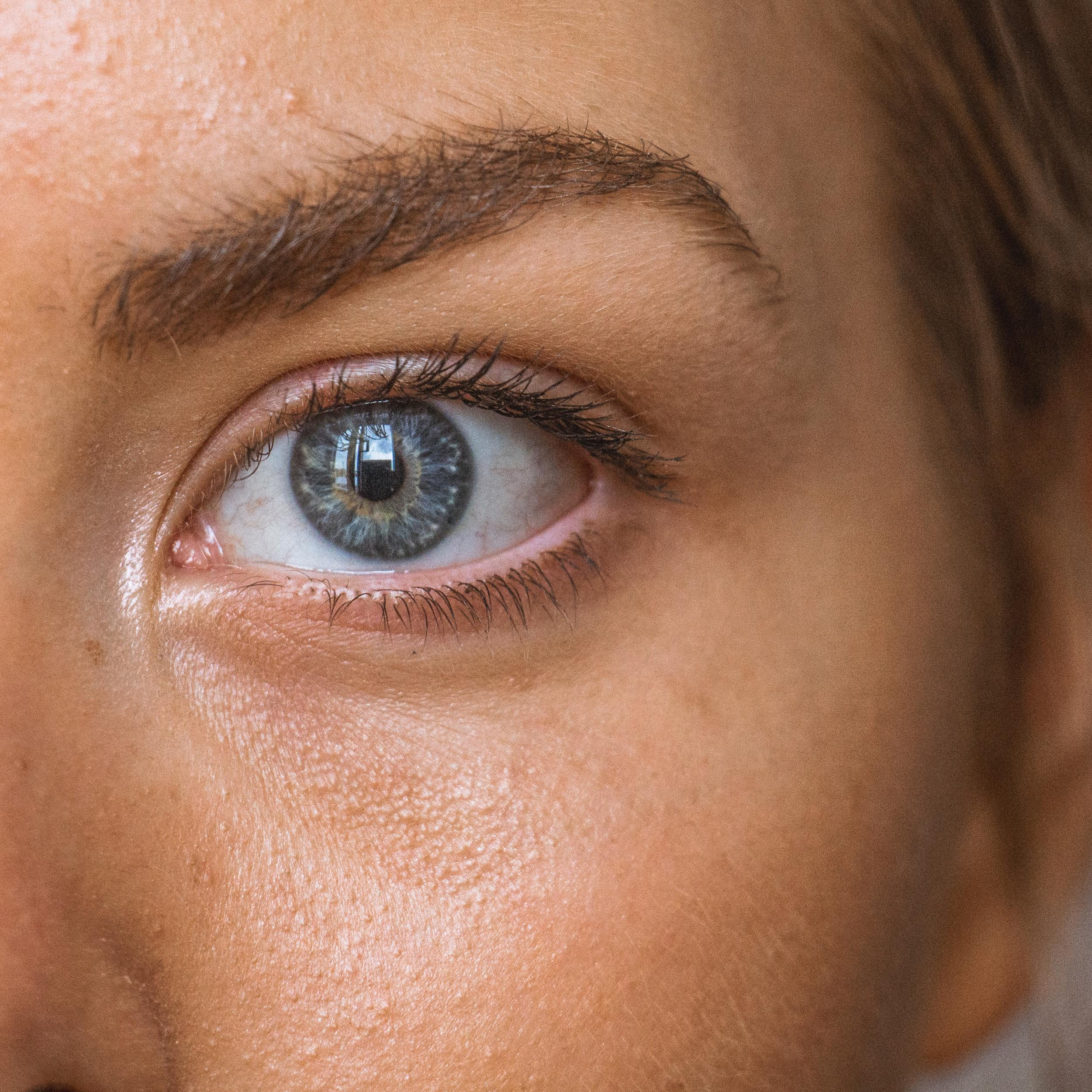 Eye Twitching Can Indicate Fatigue, Nutritional Deficiency, Stress
