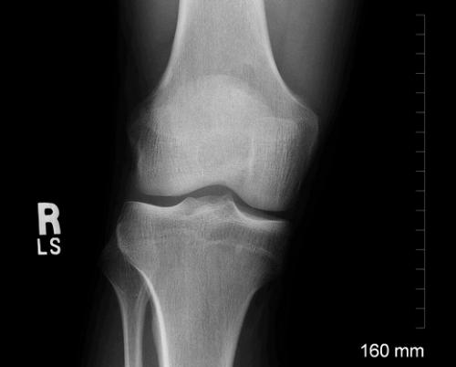 Rehabilitation within a day of knee replacement pays off