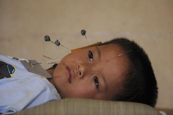 A child receives traditional Chinese acupuncture treatment for curing a facial twitch at a hospital in Jiaxing, Zhejiang province July 8, 2009. Picture taken July 8, 2009.