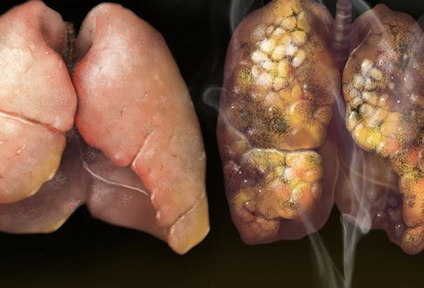 new lung cancer test predicts 5