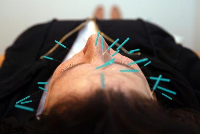 Babrbara Leivent rests during accupuncture face lift in Port Washington, New York.