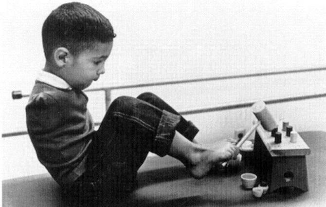 Thalidomide victim, Tony Melendez, is shown in an undated file photo at age four while attending a therapy program at the University of California