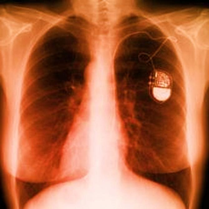 An x-ray of the chest showing a pacemaker.