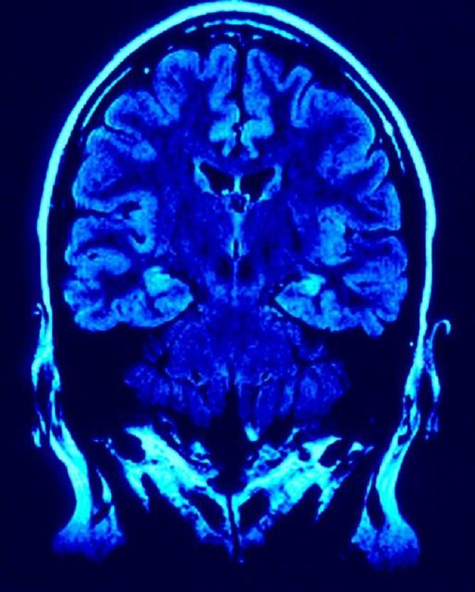 Left brain right brain split not as definite as previously thought brain scan right and left hemisphere ccuart Images