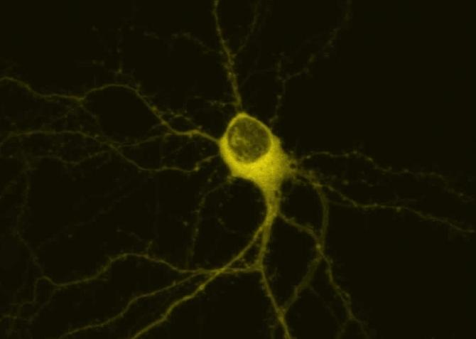 Shown here is a hippocampal neuron transfected with Yellow-Fluorescent Protein (YFP) tagged transglutaminase under control conditions.