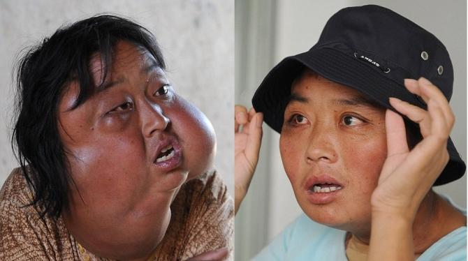 Li Hongfang, whose face in the left picture was severely disfigured by 7 large tumors, is transformed in the picture on the right after a hospital carried out the surgery for free.