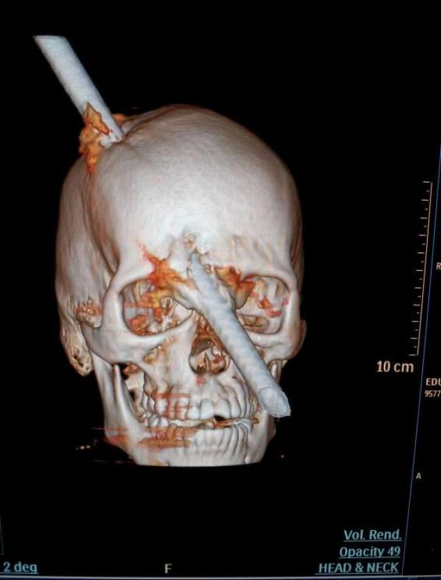 This tomography scan released Thursday, Aug. 16, 2012 by the Miguel Couto hospital, shows the skull of 24-year-old Eduardo Leite pierced by a metal bar in Rio de Janeiro.