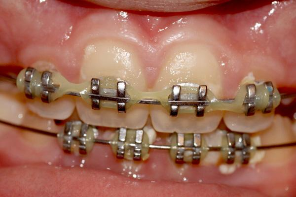 Fake fashion braces are the latest asian fashion trend trendy teenagers in china indonesia malaysia and thailand cant wait to get braces on even if they dont need it jenn durfeyflickr solutioingenieria Image collections