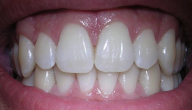 Pictures Of Adult Teeth
