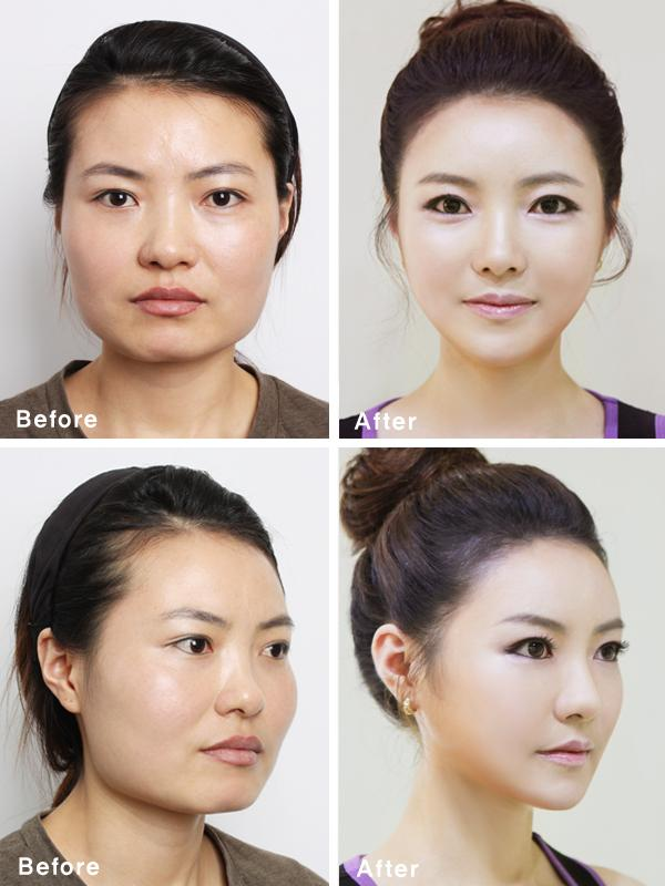 South Korean Plastic Surgery Craze Blamed For Creating Look-Alike