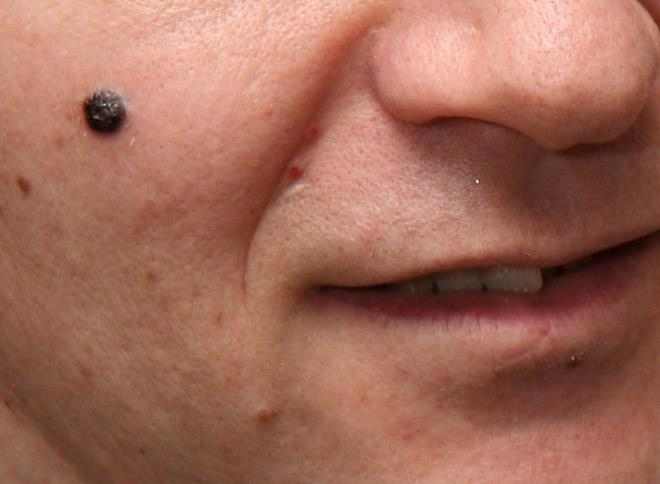 Melanoma Test Detects Scent of Cancerous Skin Cells