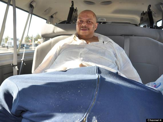 Man with 132 lb. Scrotum Is Left With One-Inch Penis