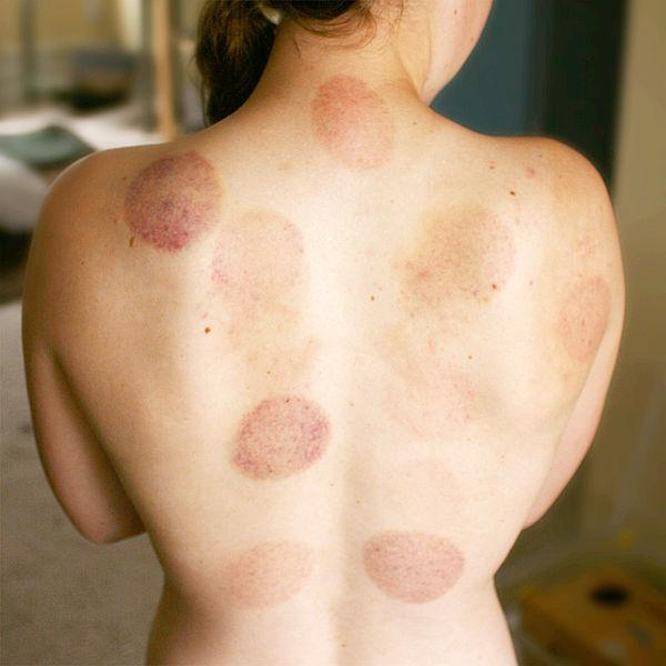 Woman with cupping bruises