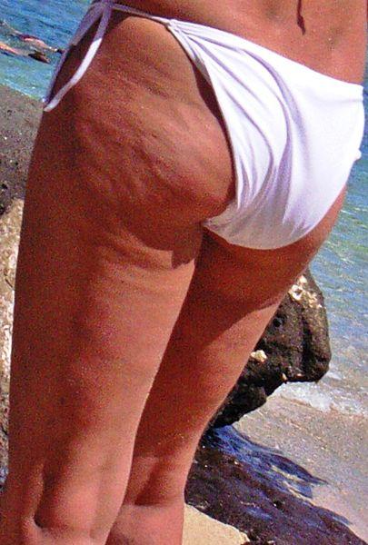 Cellulite on a woman
