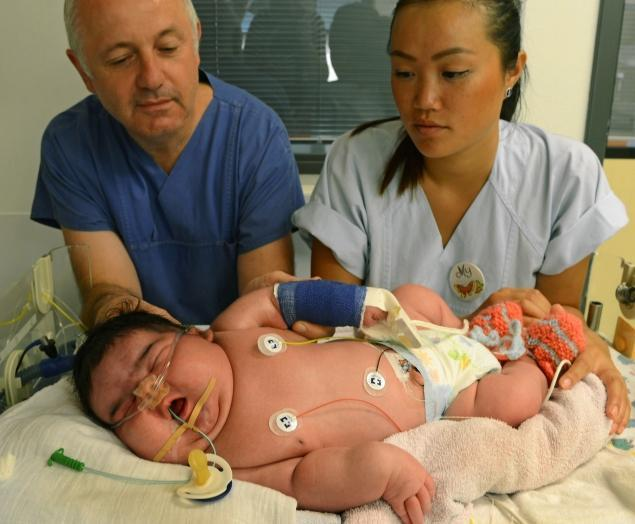 Jasleen, Germany's Largest Baby On Record