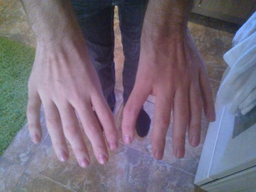 How Does A Person Wind Up With No Thumbs Medical Daily Explains Triphalangeal Thumbs
